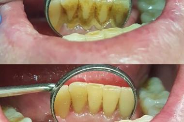 Профессиональная гигиена рта